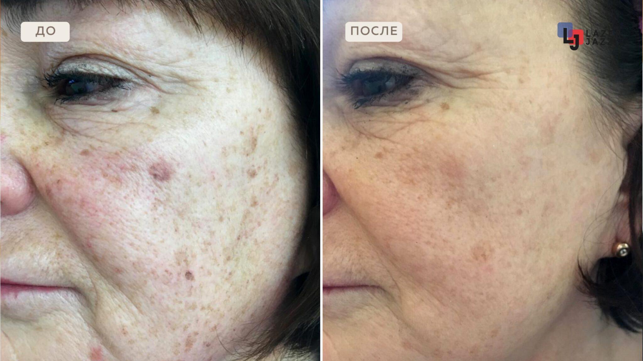 Lechenie-pigmentacii-pacientka-48-let-scaled-1