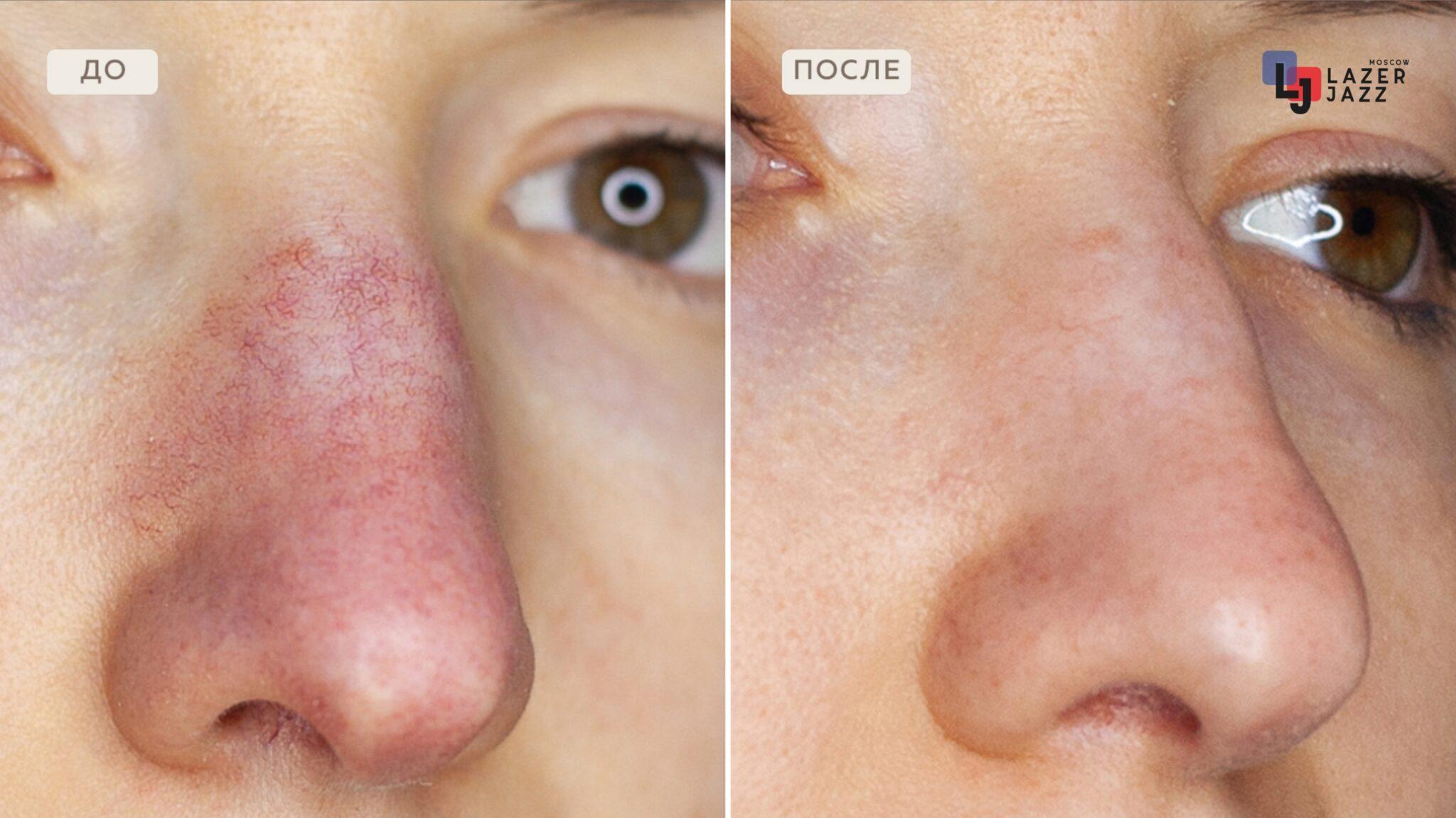 Lechenie-rozacea-pacientka-32-goda-scaled-1