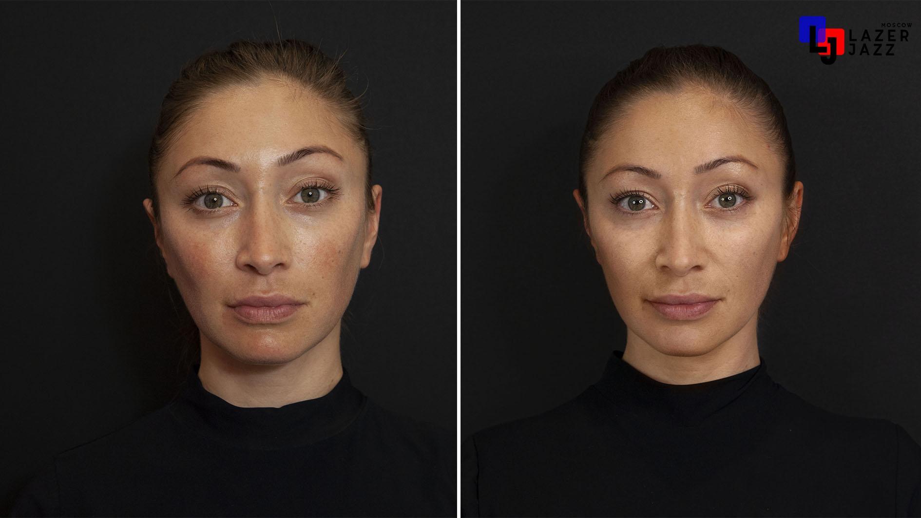 Lechenie-rozacea-pacientka-35-let-1-1