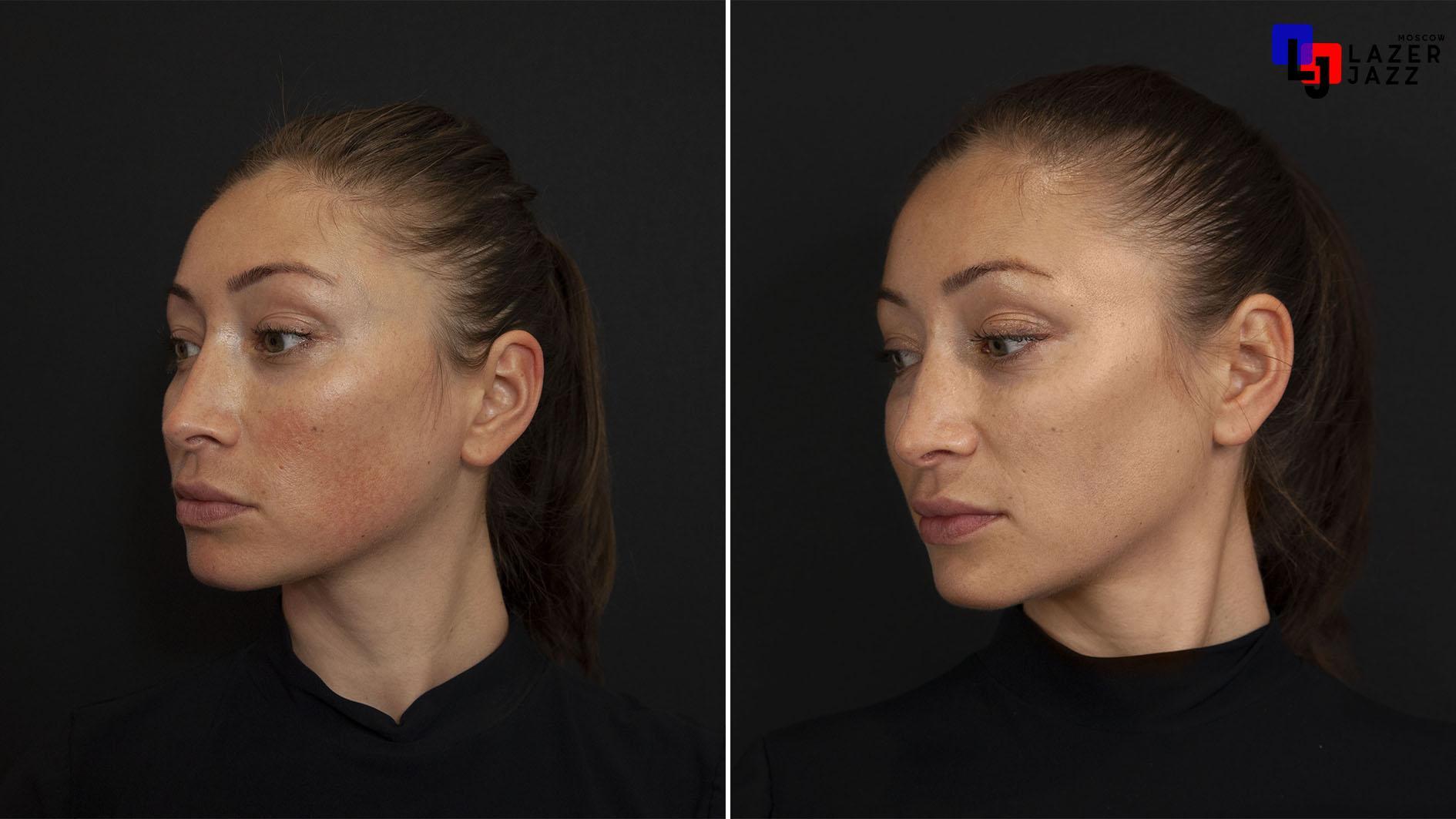 Lechenie-rozacea-pacientka-35-let
