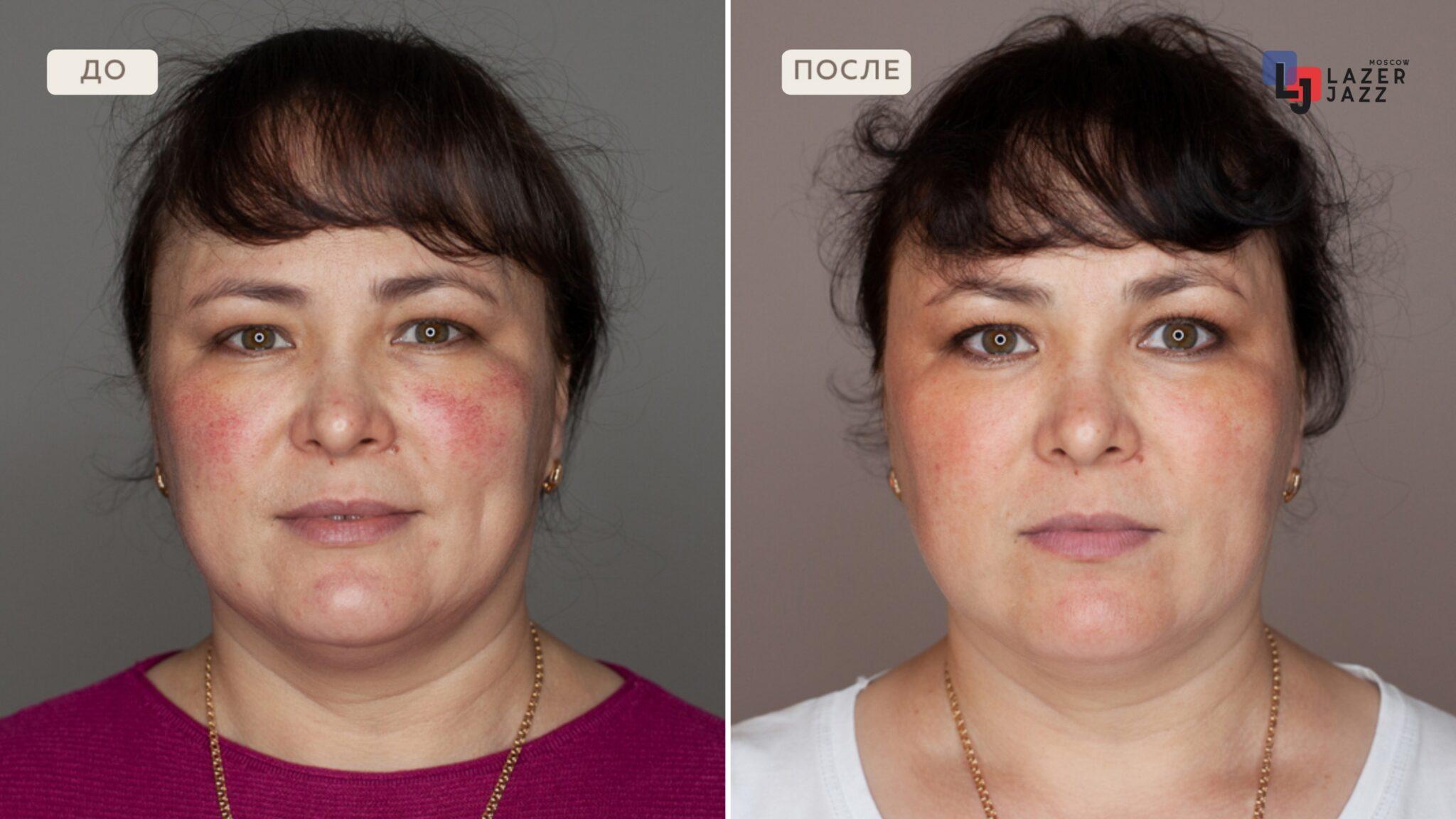 Lechenie-rozacea-pacientka-38-let-scaled-1