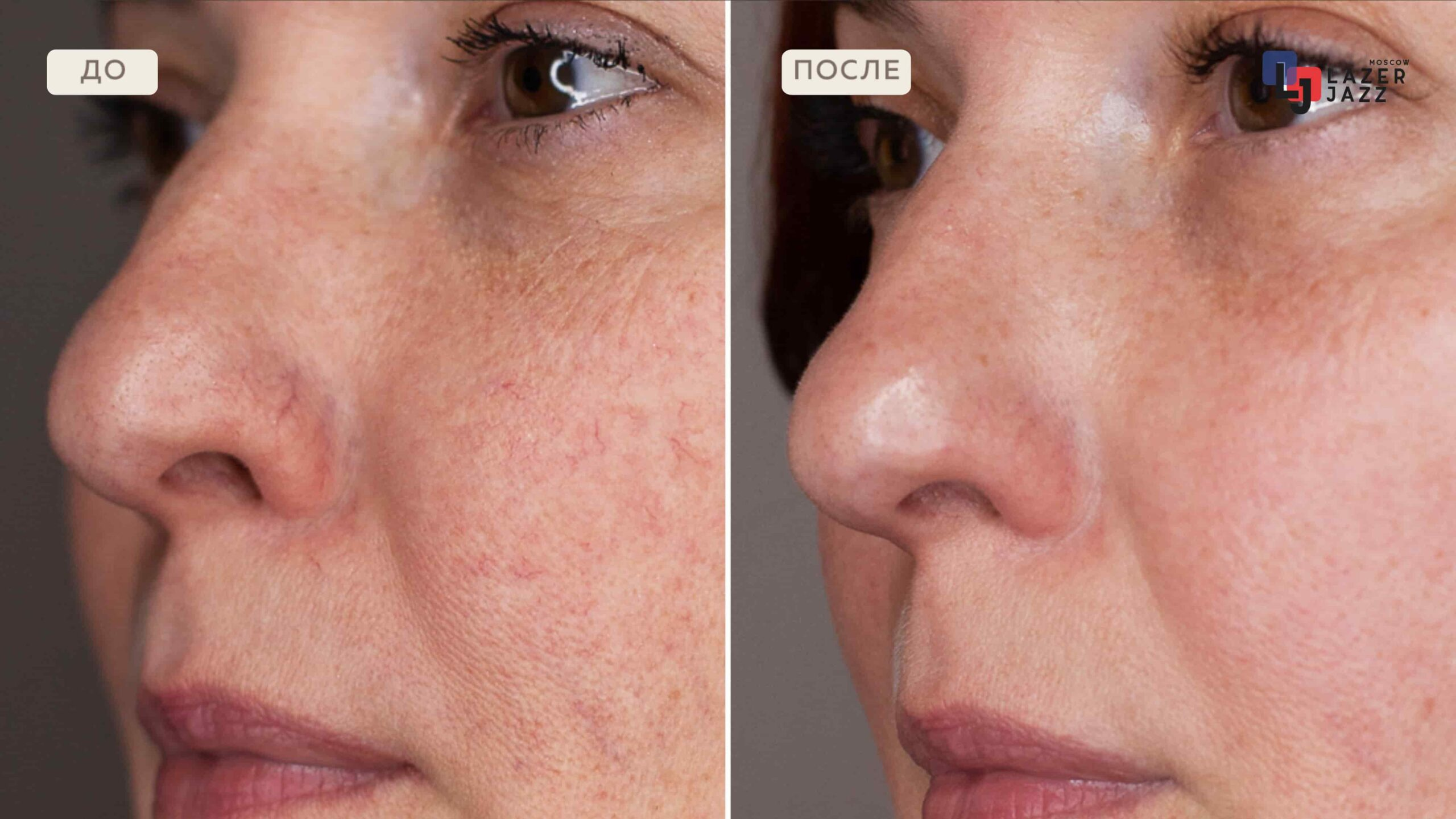 Lechenie-rozacea-pacientka-40-let-1-scaled